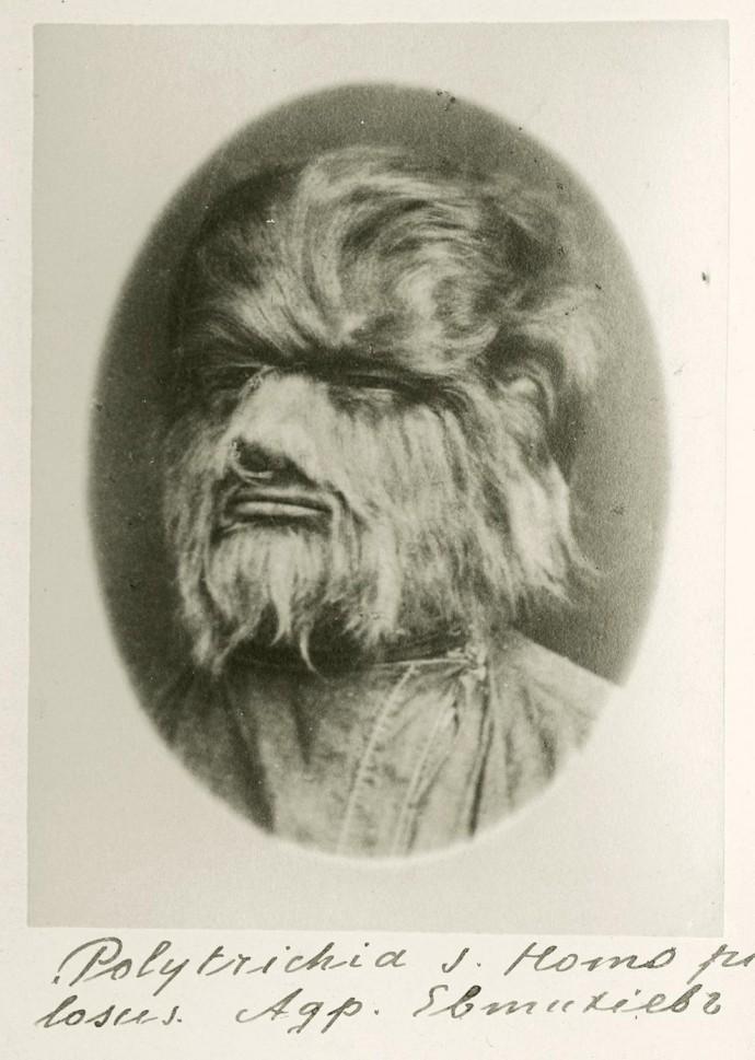 Волосатый человек Андриан Евтихиев, 19 век