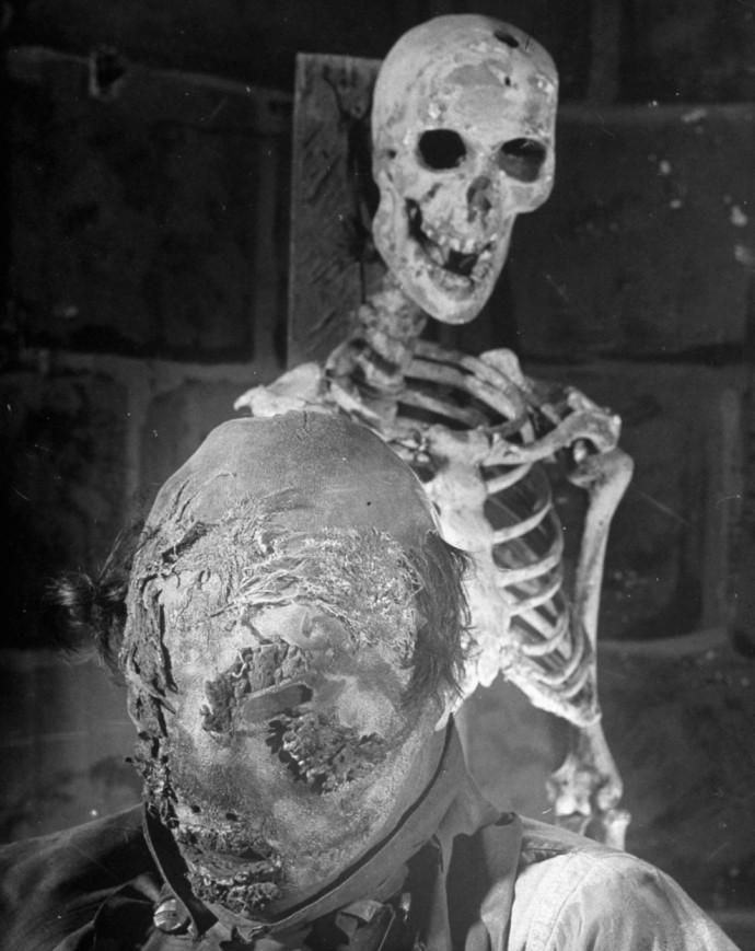 Безликая жертва обливания кислотой, примерно 1905 год