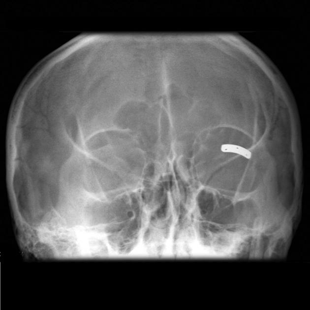 Тарзальная пластинка для устранения несмыкания века при лицевом параличе