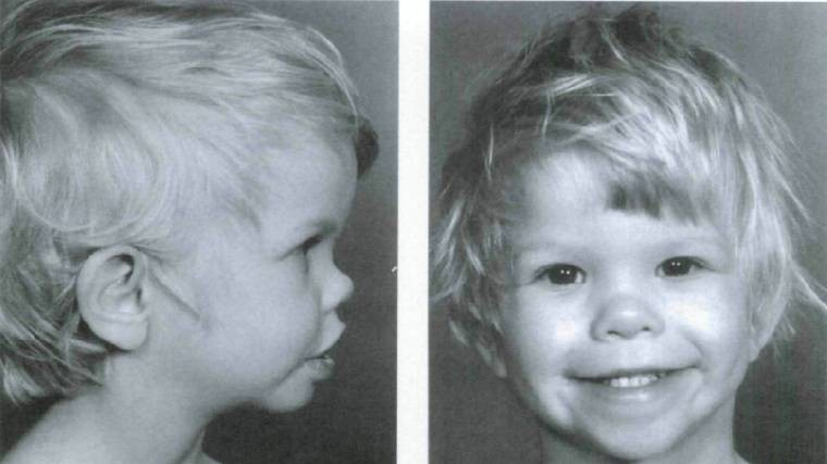 Синдром вильямса лицо эльфа фото