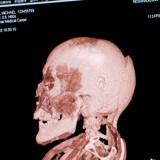 Снимок компьютерной томографии черепа Михаила Орловица