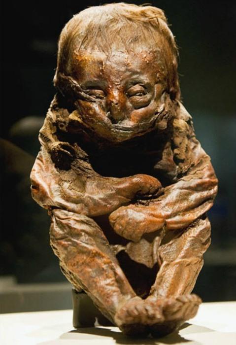 Мумия перуанского 8-10-месячного ребенка, скончавшегося 6500 лет назад, скорее всего, от болезни сердца
