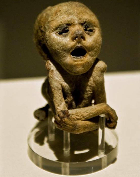 Мумия человеческого зародыша, умершего на 30-ой неделе развития от редкого дефекта позвоночника