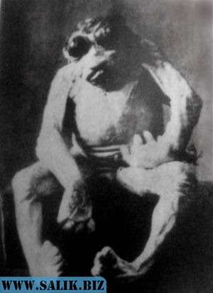 The anencéphale de Vichy. Doctors alleged that this specimen, born to a 16-year-old girl in Vichy, France in 1897, was an ape-human hybrid. (говорят , 16 летняя девушка родила это от обезьяны).