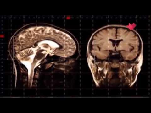 Мозг. Раскрывая мистические тайны