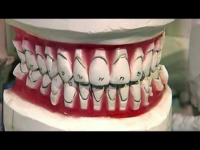 Стоматологи. Теория заговора