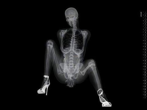 Девушка рентген. Моя Ужасная История