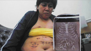 Из тела женщины растет проволока